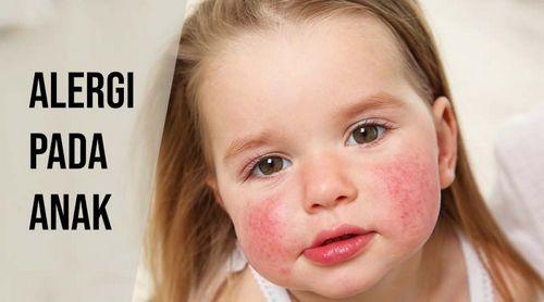 Apa Gejala Alergi Musiman? serangan alergi