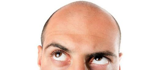 Apa Penyebab Rambut Rontok Pria di Tabung Pria? yang bisa menyebabkan