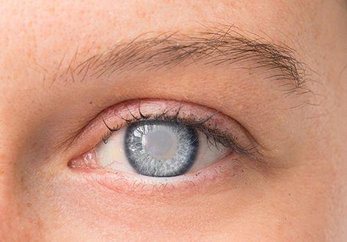 Apakah Glaukoma Itu? Cari Tahu Apa Penyebabnya Anda, dan apa alternatif