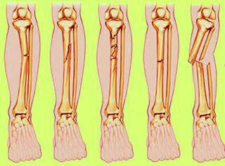 Bagaimana Menghilangkan Sakit Kaki Yang Disebabkan oleh Patah Jari Kaki kerusakan berulang pada tulang jari