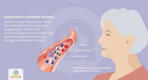 Pengobatan Leukemia Limfositik Kronis baik meskipun sudah diobati