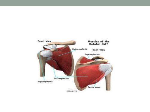 Perawatan Untuk Cedera Rotator Cuff cuff, Anda dapat dirawat dengan